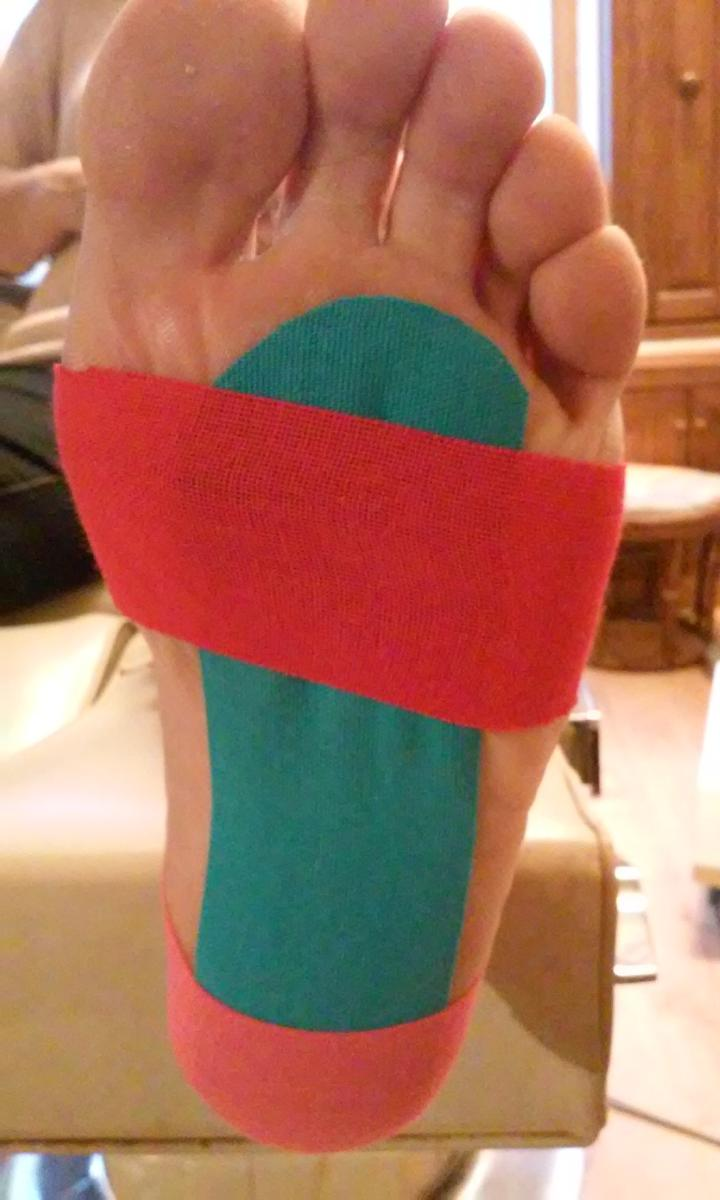 K-taping - M. Haie podologue