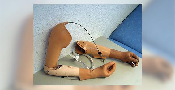 Prothèses membres supérieurs